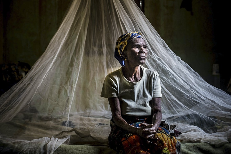 Monique, congolese who suffer from malaria over her entire lifetime.Madzia (Congo). August 2015 3rd, 2015 - Pablo Garrigós